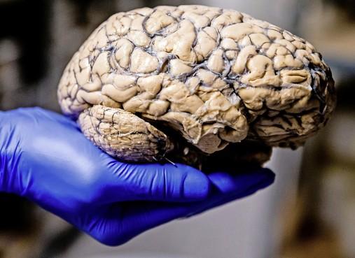 Elke kopbal funest voor hersencellen: 'Als ik het had geweten, had ik niet zoveel gekopt'
