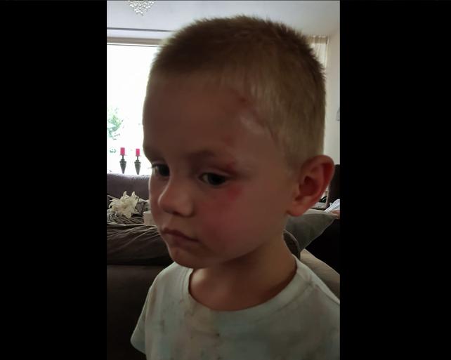 Kleuter (4) mishandeld op basisschool De Meerpaal