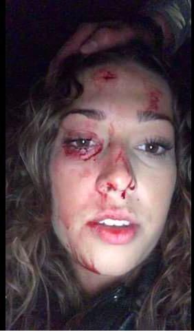 Bunschotense (20) moet zelf 112 bellen nadat ze is bekogeld met een glazen fles (update: dader bekend)