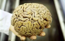 Hersenen.