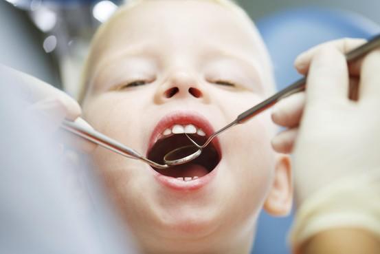 Veel Leidse jongeren niet naar tandarts