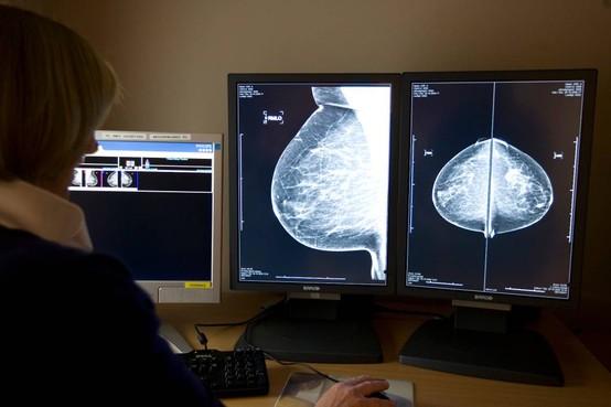 'Weinig info kankerpatiënt over lange termijn'